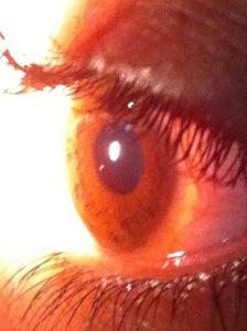 bringing sight